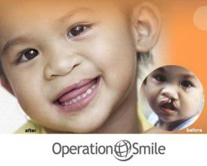 operation-smile1