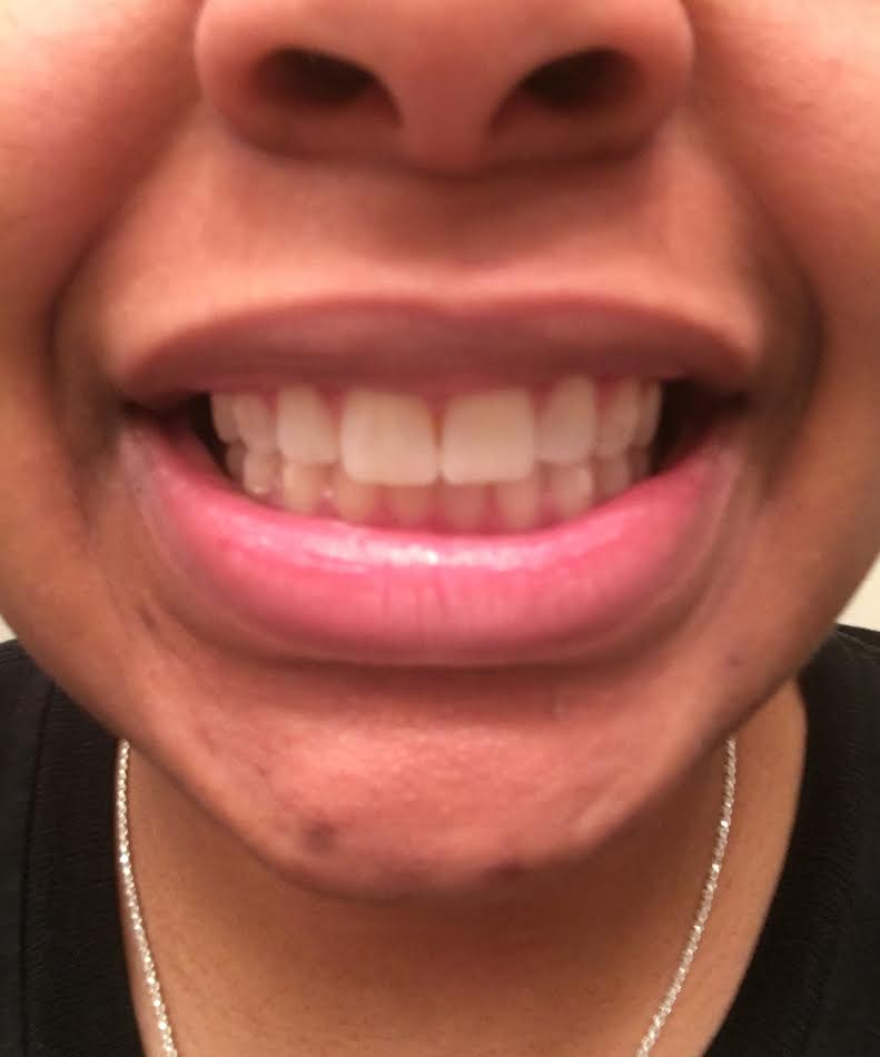 My ClearCorrect Journey #2, how ClearCorrect is changeing my teeth!