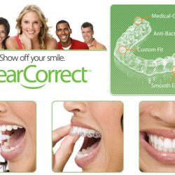 My ClearCorrect Journey Is Over and I've Never Been Happier!  #ad #ICanSmileAgain