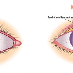Seborrheic Dermatitis on the Eyelids: Causes and Treatment
